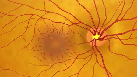 nerves : Glaucoma is a condition that causes damage to your eyes optic nerve and gets worse over time. Its often linked to a buildup of pressure inside your eye. Stock Footage