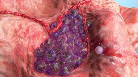 função : The cells continue to divide, impacting nearby normal cells, often reducing the function of the affected organ.