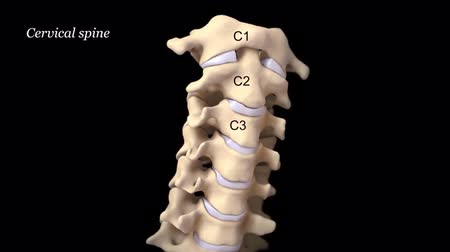 protrude : Cervical discs are the cushions or shock absorbers of the neck (cervical spine)