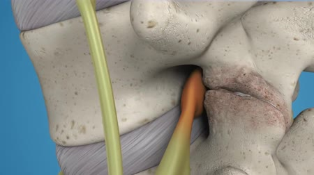 scalpel : 3D animation of the spinal cord on blue background. Endoscopic lumbar discectomy