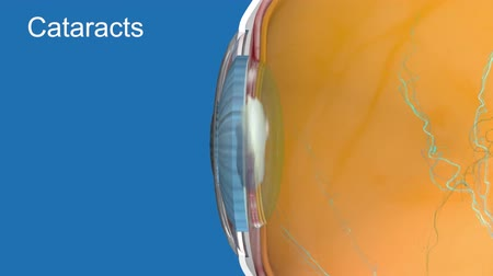 blindness : A cataract is a clouding of the lens in the eye which leads to a decrease in vision. Cataracts often develop slowly and can affect one or both eyes
