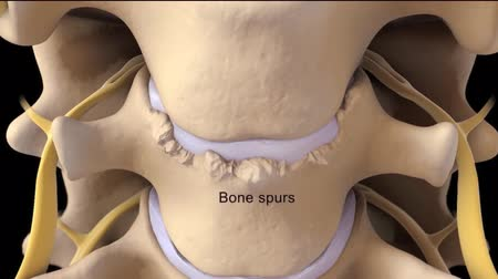 paar : Bone spurs are hard bumps that form around your joints or on your spine. Stock Footage