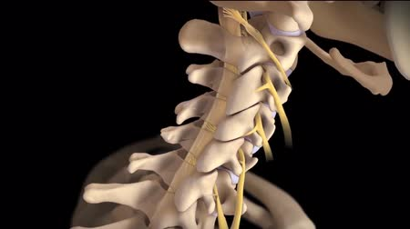 scoliosis : Vertebral canal or spinal column