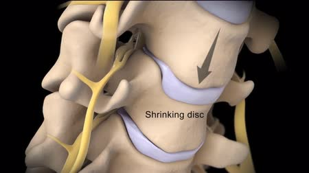 protrude : A herniated disc (also called a bulged, slipped or ruptured) disc is a fragment of the disc nucleus that is pushed out of the annulus. Stock Footage