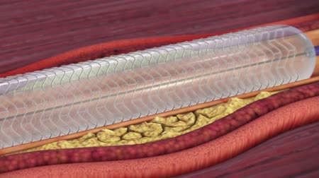 dosya : Use of a Self-Expandable Intracranial Stent for Acute Stroke Treatment