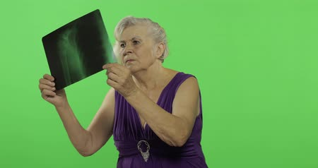 érettség : An elderly woman looking examine at her x-ray image. Old pretty grandmother in a purple dress. Place for your logo or text. Chroma key. Green screen background Stock mozgókép