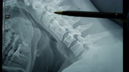 pŁuca : Doctor examining an x-ray of a patients spine. Healthy easy men in the picture