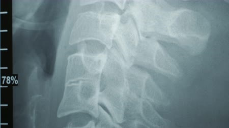 inflammation : Doctor examining an x-ray of a patients spine. Healthy easy men in the picture