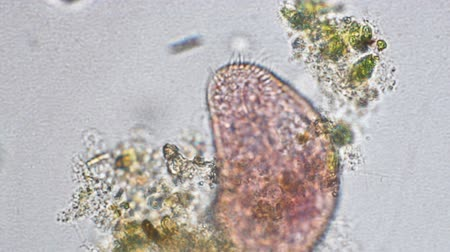 zvětšit : Rotifer magnification at optical microscope