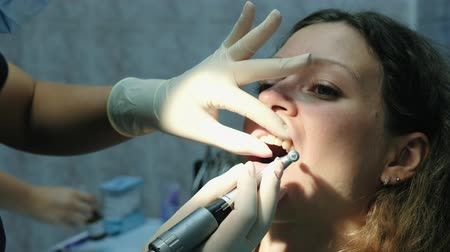 aparat ortodontyczny : Dentist polishes and cleans teeth before installing the bracket system. Visit to the dentist Wideo
