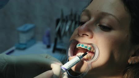 teeth with braces : Dentist applies orthodontic blue glue on the teeth to the woman in the latch before installing the bracket system close-up. Visit to the stomatologist orthodontist