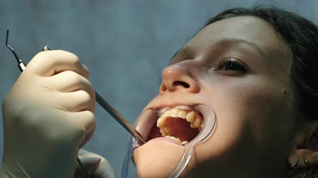fogászat : Woman is treating teeth with an orthodontic fixator in her mouth close up. Visit to the dentist