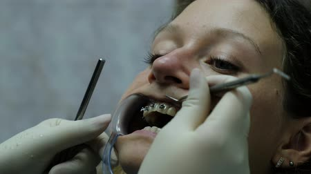 фиксация : Visit to the dentist, installation of the bracket system and correction of the malocclusion. Orthodontist corrects the established bracket close-up.