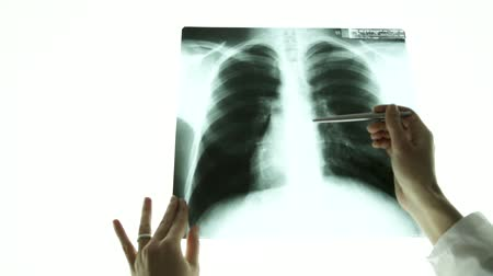 рентгенологическое : Close up doctor hand pointing on x-ray image of lungs