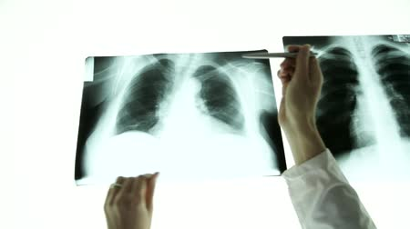 muayene : Woman Doctor Hands Pointing on Lungs Xray light table Stok Video
