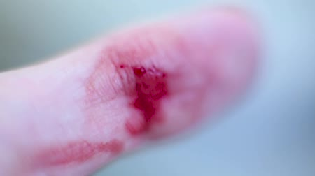 yara : A wound on a finger and blood macro. Stok Video