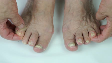 infecção : Onychomycosis. Fungus infection on nails Stock Footage