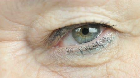 crinkle : Woman aged 60s opens and closes up one eye. Close up