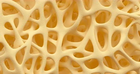 quebradiço : Developing of human bone osteoporosis spongy texture from normal to sick, time lapse 3d animation, closeup