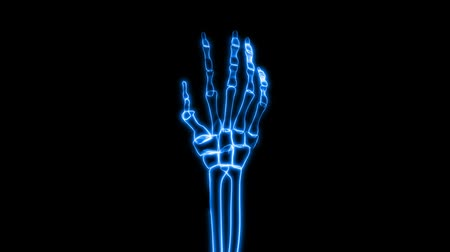 artrite : v.2 - Seamless looping video animation of X-Ray of Human Hand Grasping (HD).- Vídeos