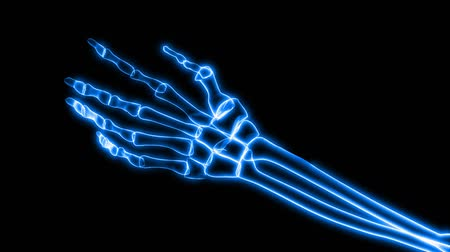 arthritis : v.1 - Seamless looping video 3D animation of X-Ray of Human Hand Grasping (HD).-