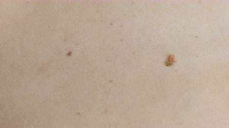 benign : Womans white skin with moles. View top. Close up back. Stock Footage