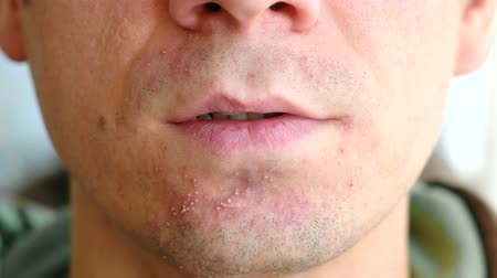moço : Skin irritation after shaving. Pimples on the mans chin, closeup.