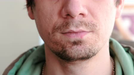 annoyance : Herpes. Lip treatment. Close-up of the mans lips with herpes. Front view.