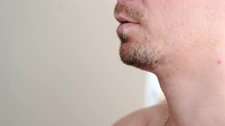 annoyance : Herpes. Lip treatment. Close-up of the mans lips with herpes and cream on lips. Front view. Stock Footage