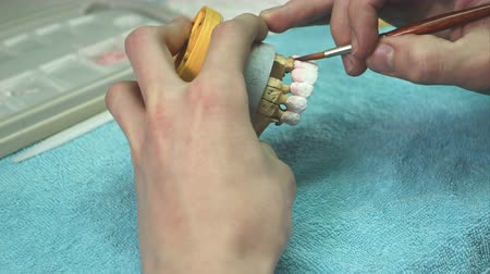 furnér : Dentist prepare model of the human jaw