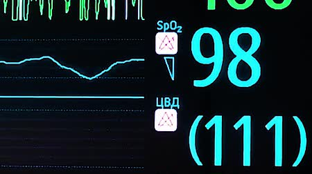 vital signs : ECG monitor in operation room Stock Footage