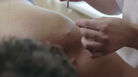 akupresura : The doctor removes the acupuncture needle from shoulder of patient.