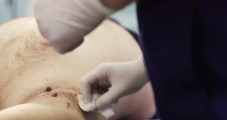hpv : Disinfection before removing of papillomas. Stock Footage