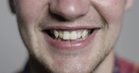 brackets : The man is smiling. Crooked teeth needing braces.