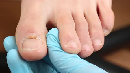 culpa : Two nails grow out. Nail surgery. The nail was produced within both folds, forming a horizontally split nail