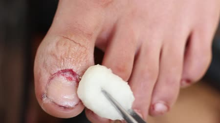 lesion : Toe healing process after nail removal. Intraoperative toe during the procedure