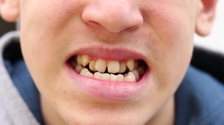 braces on teeth : Crooked, crowded, and protruding teeth. A teen to have a bad bite Stock Footage