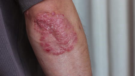 esfregar : Psoriasis is a noncontagious, chronic skin condition that produces plaques of thickened, scaling skin