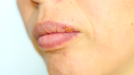 inflamed : Herpes simplex on lips