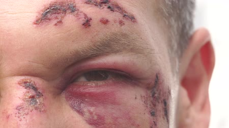 bruising : A wounded man with real wounds, bruises and blood on his face after the accident. Medical assistance in the hospital Stock Footage