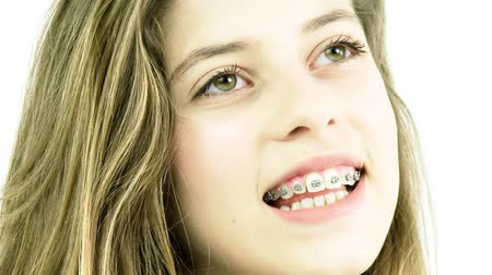braces smile : Portrait of smiling female teenager with braces smiling