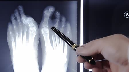 рентгенологическое : doctor examining foot fingers exposed on x-ray film Стоковые видеозаписи
