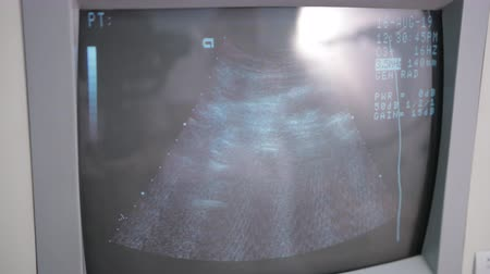 ultrasound scan : hospital, ultrasound machine screen, with defined numbers and measurements Stock Footage