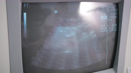 sonography : hospital, ultrasound machine screen, with defined numbers and measurements Stock Footage
