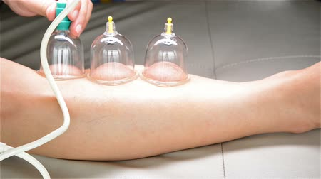 emme : man doing cupping therapy on his leg