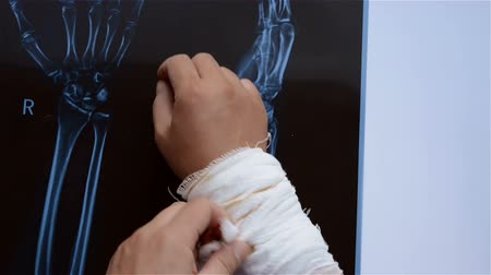 relieve : taking out the wrapping bandages for a hurt hand with an X-ray film underneath