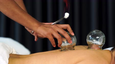 suction cups : glass cup with fire for cupping treatment on female back