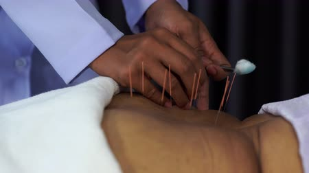 akupresura : Close-up of senior female back with steel needles during procedure of the acupuncture therapy