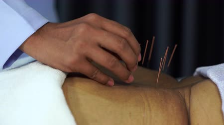 acupression : Close-up of senior female back with steel needles during procedure of the acupuncture therapy