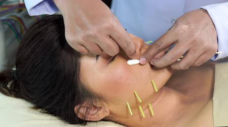 čelo : young woman undergoing acupuncture treatment on face